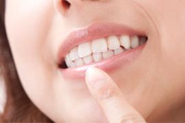 歯並びをよくするメリット